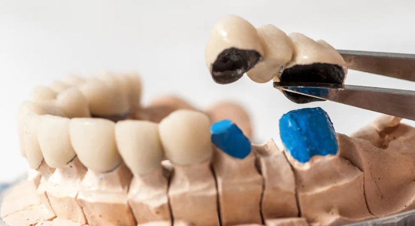 WHAT ARE DENTAL BRIDGES WHAT TYPES AND INDICATIONS ARE THERE