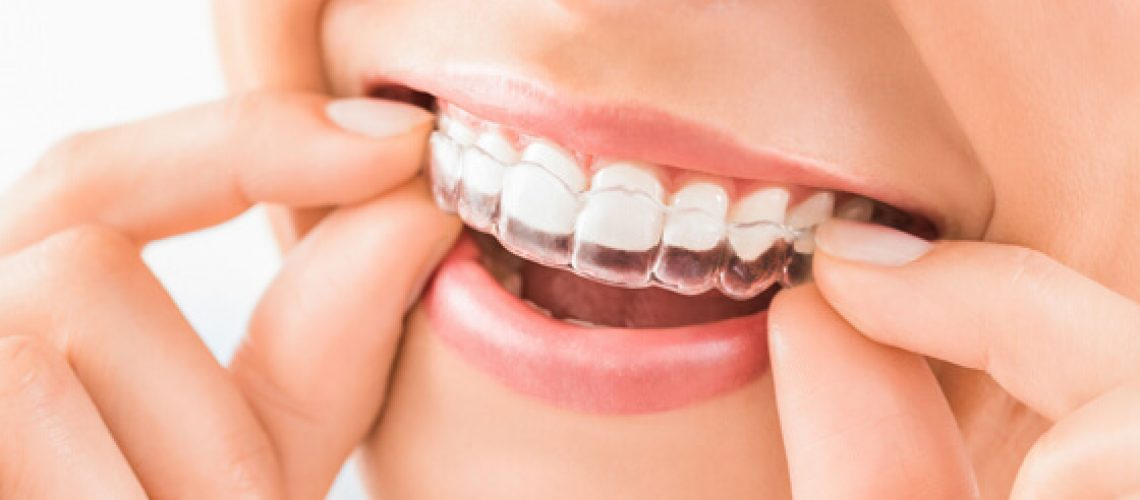 What is Invisalign-1